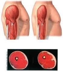 Músculos. Pérdida de Masa Muscular. Fragilidad | Tu médico