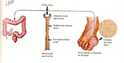 imagenes de acido urico en la mano cristales de acido urico en articulaciones medicamentos para combatir la gota