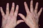 porfiria-6-thumb