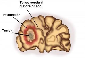 Tumor-cerebral-benigno