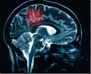 cerebro-tumores_thumb1
