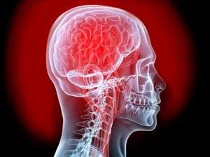 4e973b25b93795434d000005_ataque.cerebral.8