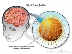 encefalitis-viral-36719767