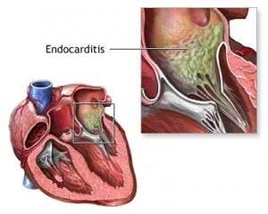 endocarditis-3