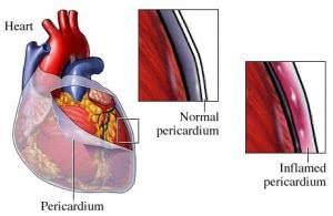 pericarditis-2