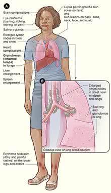 sarcoidosis-1