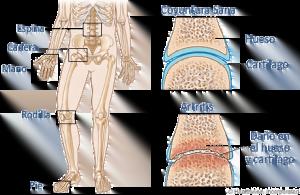 artritis-1-