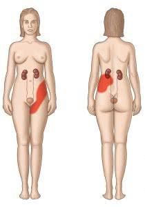 renal-colic