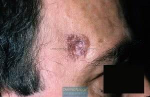 epitelioma basocellulare4