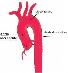 Aorta_ascendente