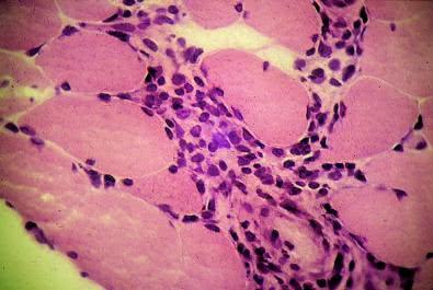 miopatiaifidiopac1