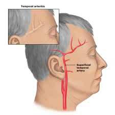 Arteritis-temporal123