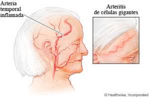 Inflamación-de-las-arterias-y-Arteritis-de-celulas-gigantes-300x195