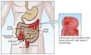 Enfermedad-de-Crohn-Sintomas