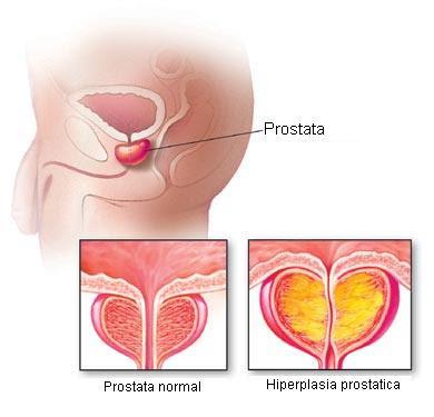 Простата у мужчин анализ на раковые клетки