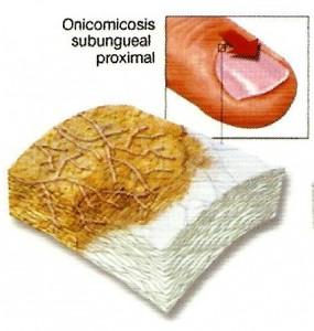 omnicosis3