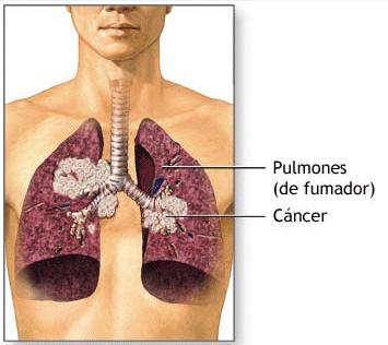 708_pulmon_fumador_cancer