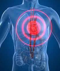chest-pain
