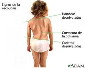 signos-de-escoliosis