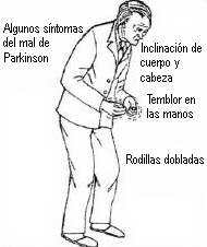 sintomas-del-parkinson