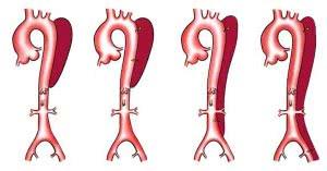 diseccion-aortica